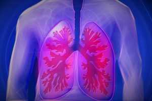 лечение лёгких
