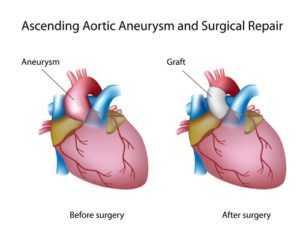 aortic aneurysm 300x240 - Аневризма аорты