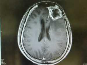 glioblastoma 1 300x225 - Глиобластома