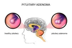 pituitary adenoma1 300x200 - Аденома гипофиза