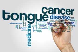 tongue cancer 300x200 - Рак языка