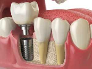 dental implantation2 300x225 - Имплантация зубов