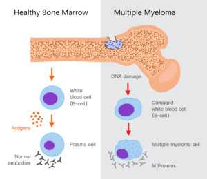 myeloma 300x260 - Лечение миеломы
