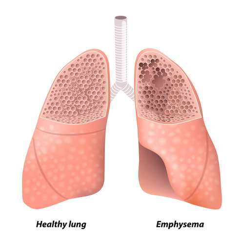 pulmonary emphysema - Лечение эмфиземы легких