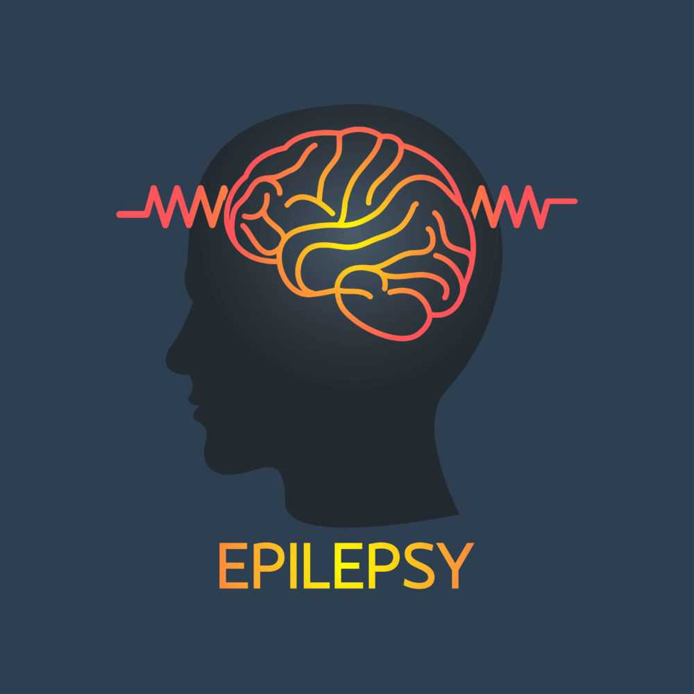 surgical treatment of epilepsy 2 - Методы