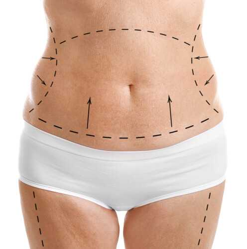 abdominoplasty - Методы