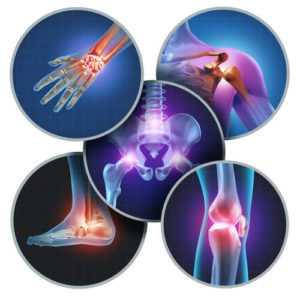 joints 300x300 - Лечение суставов