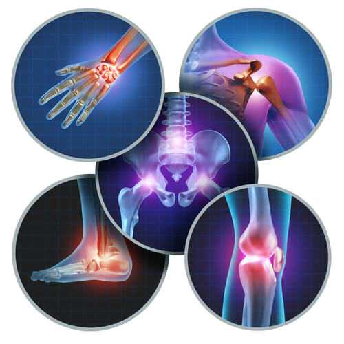 joints - Лечение суставов