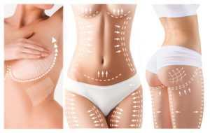 liposuction 300x190 - Липосакция