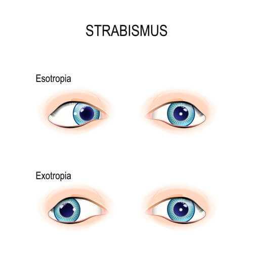 strabismus - Лечение косоглазия