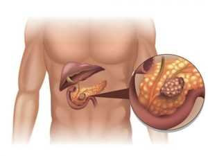 Рак поджелудочной железы