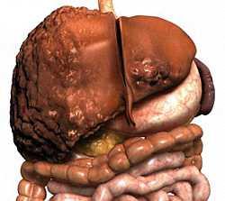 519 519 1 - Лечение цирроза печени